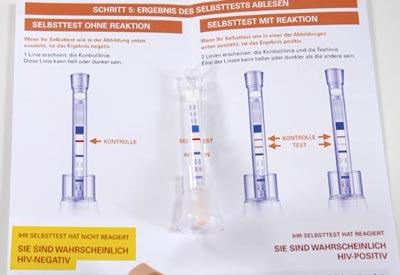 Hiv test hausarzt ergebnis